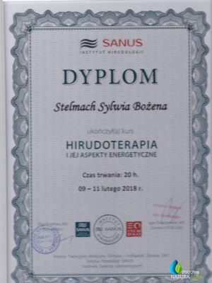 hirudoterapia-595x830